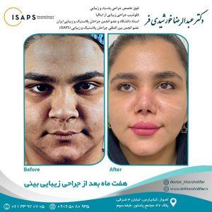 جراحی زیبایی بینی در اهواز