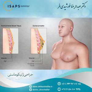 جراحی ژنیکوماستی