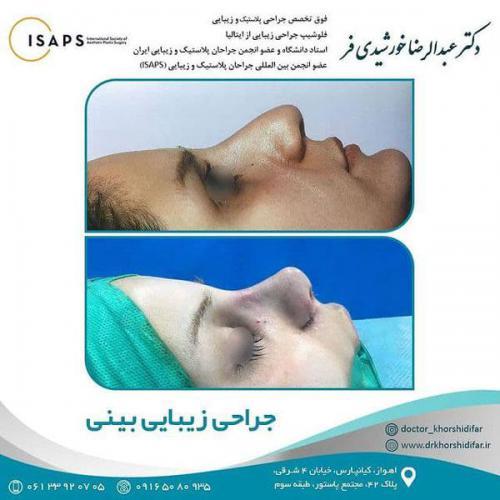 جراحی زیبایی بینی در اهواز 1