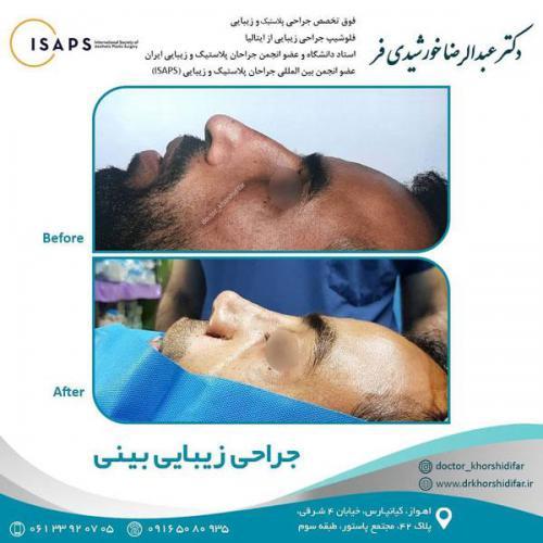 جراحی زیبایی بینی در اهواز 10