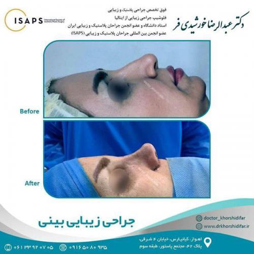جراحی زیبایی بینی در اهواز 11