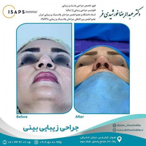 جراحی زیبایی بینی در اهواز 12