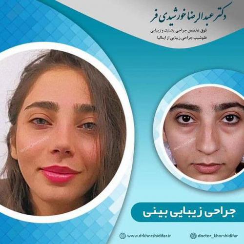 جراحی زیبایی بینی در اهواز 14