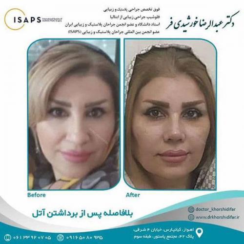 جراحی زیبایی بینی در اهواز 15