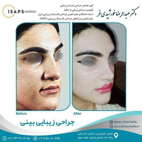 جراحی زیبایی بینی در اهواز 17