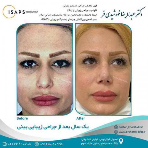 جراحی زیبایی بینی در اهواز 21