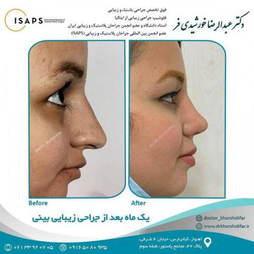 جراحی زیبایی بینی در اهواز 23