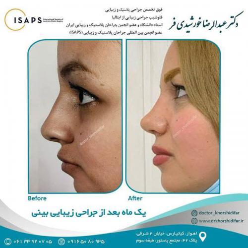 جراحی زیبایی بینی در اهواز 24