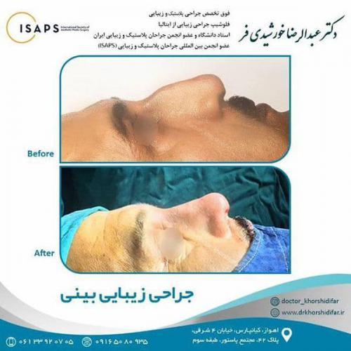 جراحی زیبایی بینی در اهواز 3