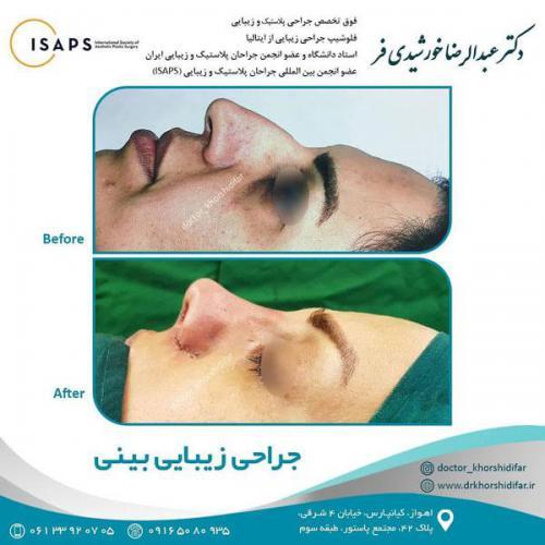 جراحی زیبایی بینی در اهواز 4
