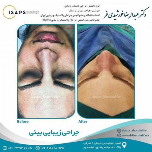جراحی زیبایی بینی در اهواز 5