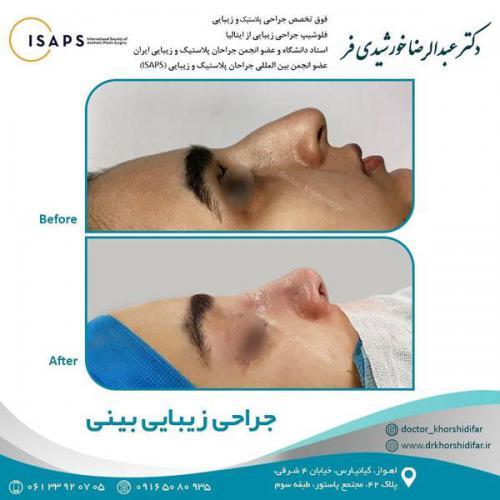 جراحی زیبایی بینی در اهواز 6