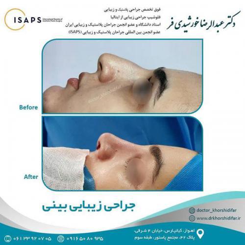 جراحی زیبایی بینی در اهواز 7