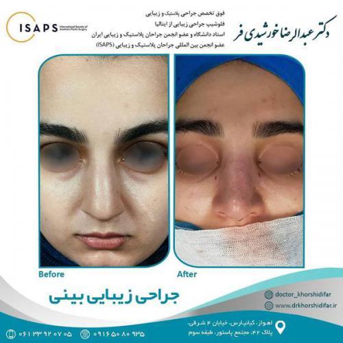جراحی زیبایی بینی در اهواز 8
