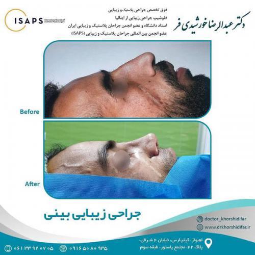 جراحی زیبایی بینی در اهواز 9